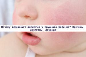 Read more about the article Почему возникает аллергия у грудного ребенка? Причины. Симптомы. Лечение