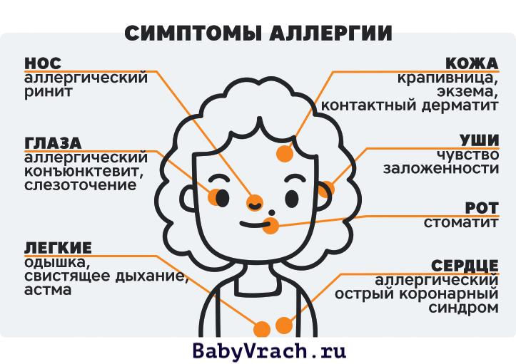 инфографика симптомы аллергии